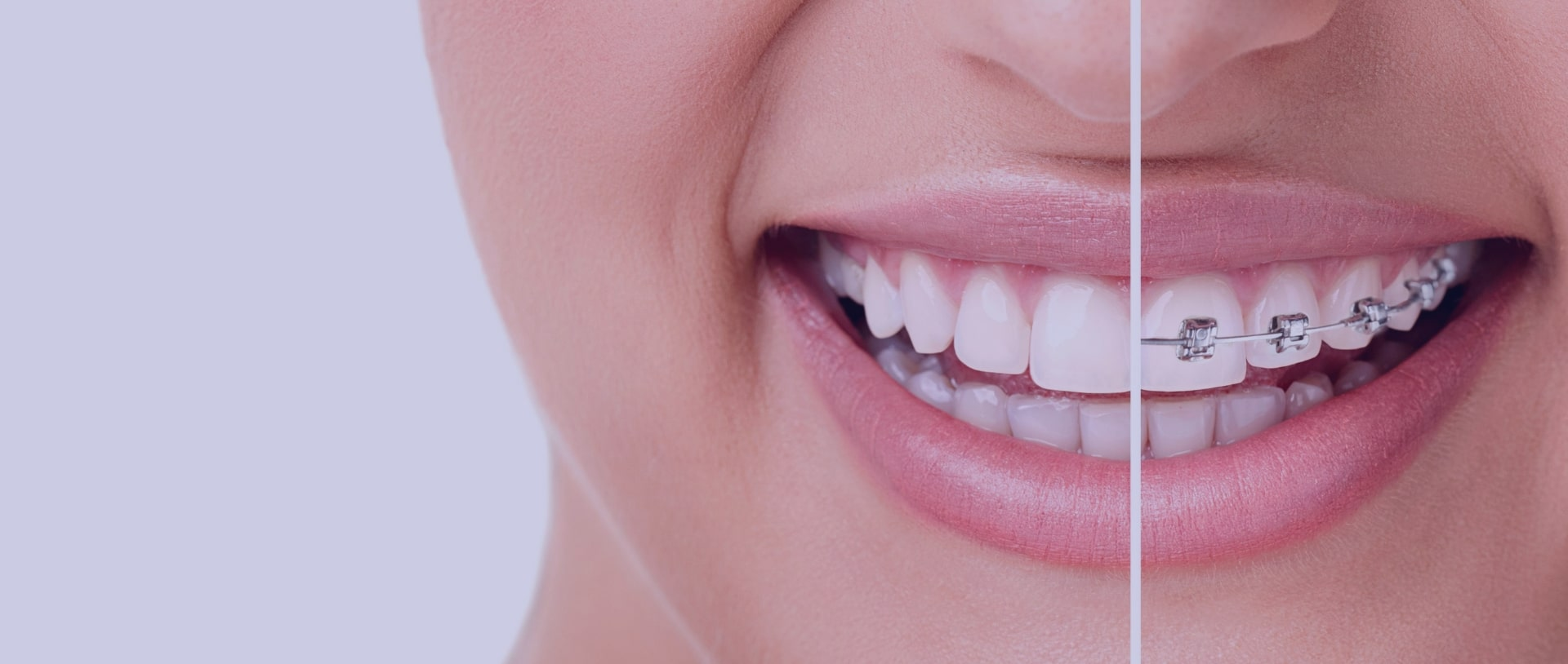 Dental Implants In Chennai Best Cosmetic Dentist In