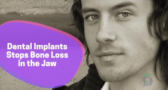 Dental Implants arrest bone loss in the jaw