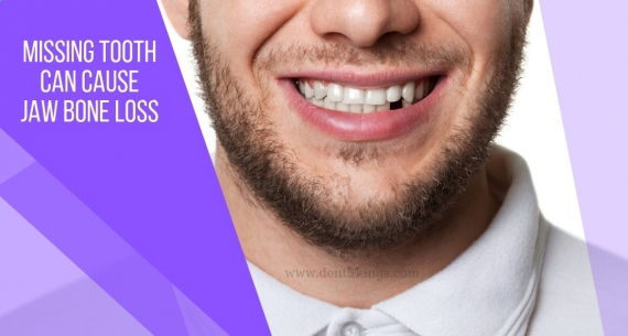 How missing teeth can cause bone loss in the jaw?