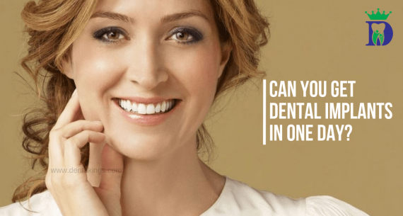Can you get Dental implants in one day?