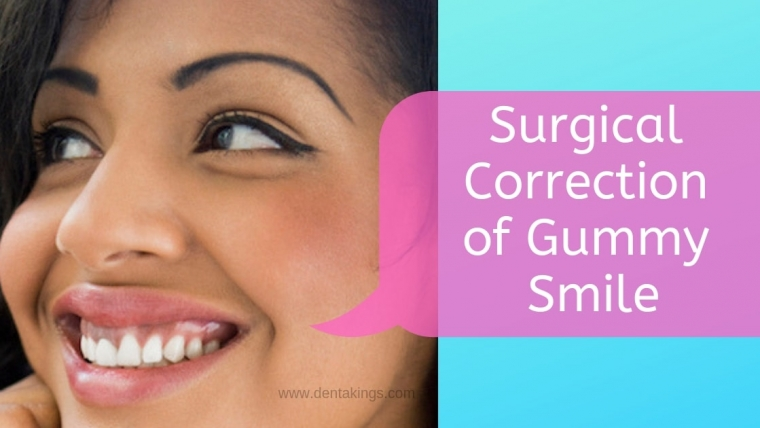 Surgical options for your Gummy Smile