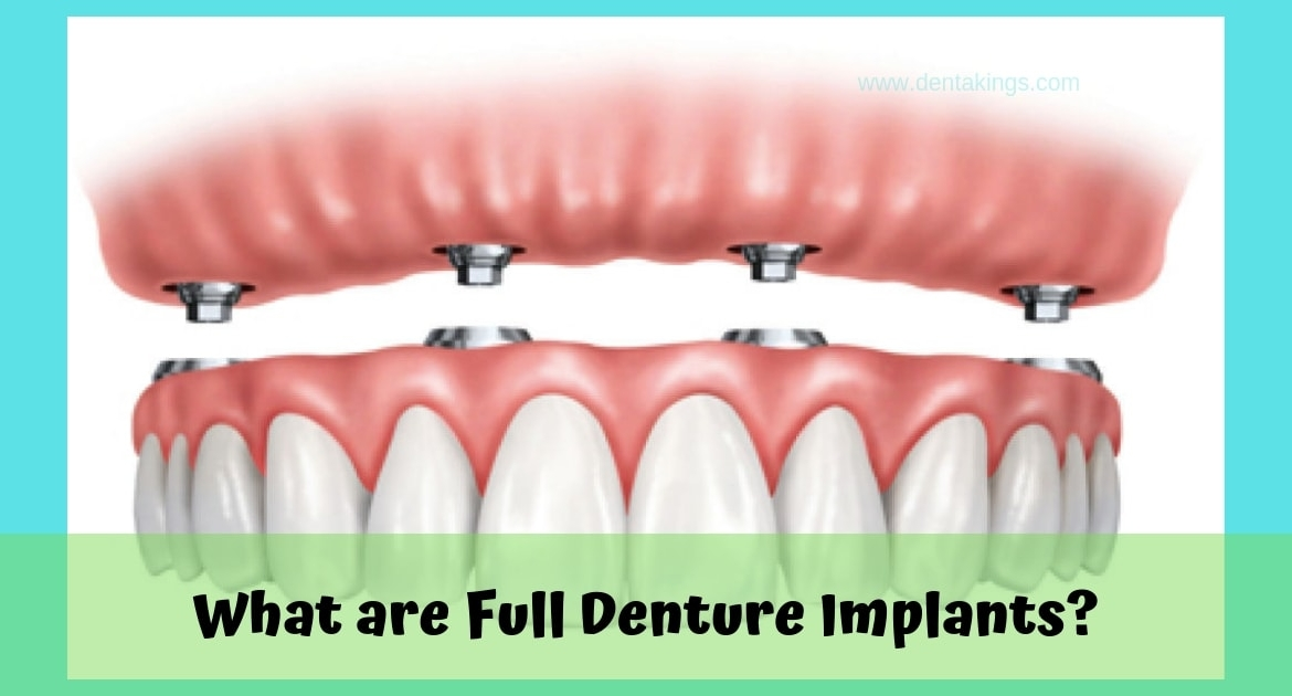 What are Full Denture Implants?