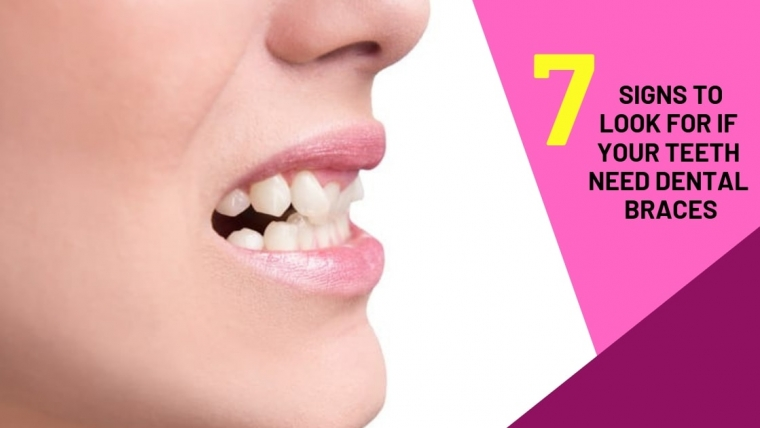 7 Signs to look if your teeth needs Dental Braces