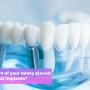 How to Care for your newly placed Dental Implants?