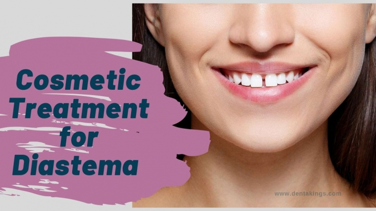 Cosmetic Treatment for Diastema