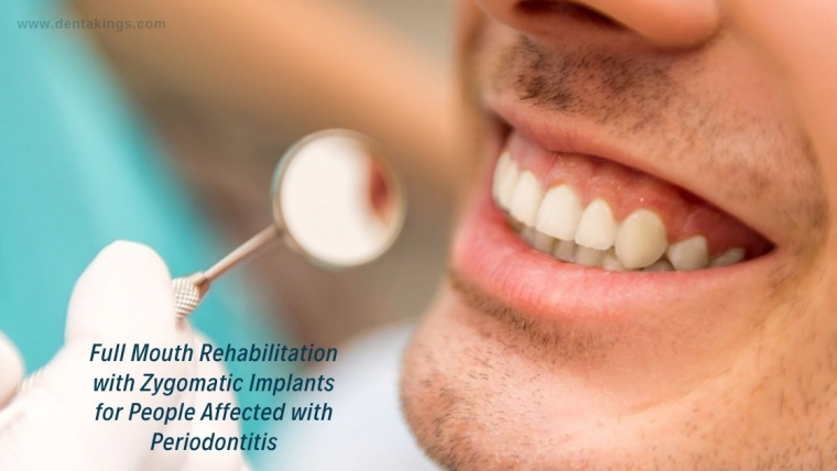 Full Mouth Rehabilitation with Zygomatic Implants for people affected with Periodontitis