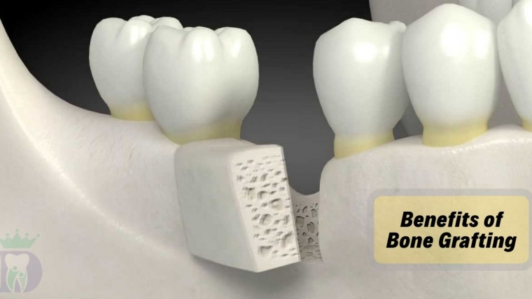 Benefits of Bone Grafts