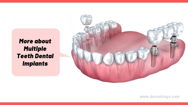 More about Multiple Teeth Dental Implants