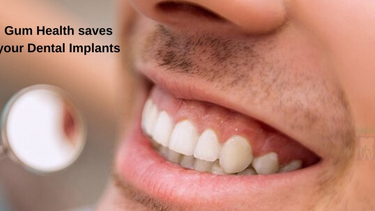 Gum Health saves your Dental Implants