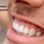 Gum Health saves your Dental Implants