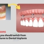 5 Reasons why you should switch from Dentures to Dental Implants