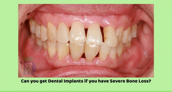 Can you get Dental Implants if you have severe bone loss?