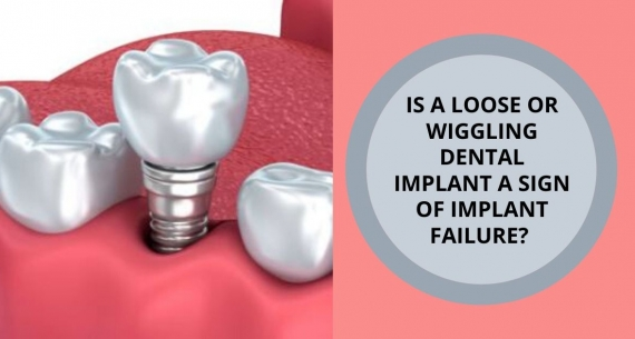 Is a wiggling Dental Implant a sign of Implant failure?