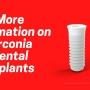 More Information on Zirconia Dental Implants