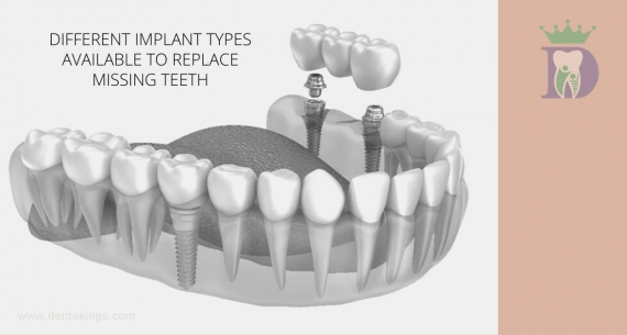 How many Implants you need to replace all your teeth?